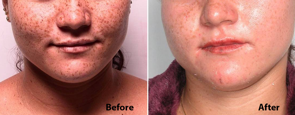 meladeep mask before and after 2 copy